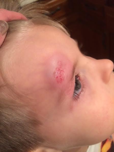 Elijah's eye 3